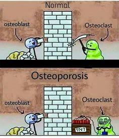 Osteoblasts and osteoclasts activity in osteoporosis Biology Jokes, Science Jokes, Dentist Humor, Medical Humor, Med Surg Nursing, Musculoskeletal System, Student Memes, Doctor Humor, Medical Information