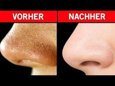 Befreie dich von großen Poren - 5 wirksame Mittel! - YouTube