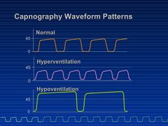 Capnography Waveforms | Arterial to End Tidal CO2 Gradient ...