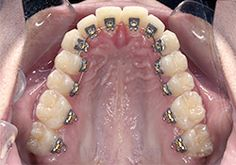 This may be what you've been waiting for... Invisible Braces!