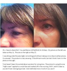 We want to hear all about your Nerium Experience. Before and after pictures are so important to us as well as your personal testimonials! This lady had dramatic fine lines and the start of some deep lines under her eyes. After a trial period with Nerium her skin looks easily 5 years younger and she is as happy as she has ever been with the results from a skin care product.