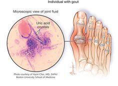 Gout 2012-11