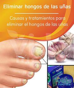 Remedios caseros para eliminar los hongos de las uñas.