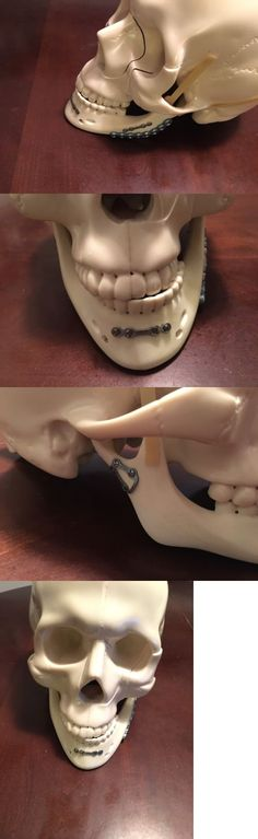 other orthopedic products skull with titanium fixation plates oral and surgery must have orif