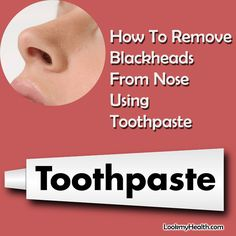 How To Remove Blackheads From Nose Using Toothpaste - Everybody is up to with this problem of blackheads on nose. Even me too get them on my nose every  #lookmyhealth #health #getrid #howto #toothpaste #blackheads #getridofblackheads #getridoflackheadswithtoothpaste