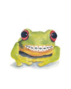 Original Frog Watercolour Painting - Big Smile, Braces, Tree Frog, 8x10. $40.00, via Etsy.