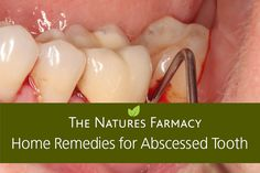 An abscessed tooth is a common term used to describe an infection at the root a tooth or an infection that occurs between the gum and a tooth. This causes severe tooth decay and can…
