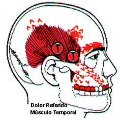 Image result for trigger points