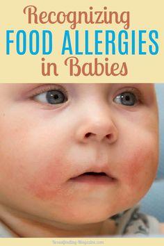 99 Best Food Allergies In Babies Images In 2020 Food Allergies Allergies Baby Food Allergies