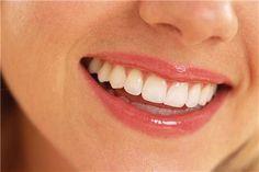 Diş kırıldığında hemen bunu yapın