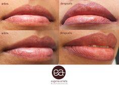 Micropigmentación de labios. Conseguimos perfilar los labios con un resultado super natural y, de cara al verano, estaremos siempre perfectas.