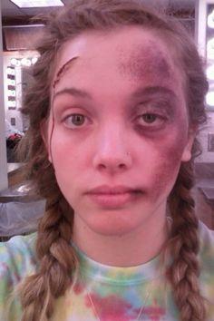 Fake injury day road rash and gash on head. Swelling of the eye