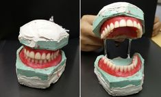 Check it out! Dentures