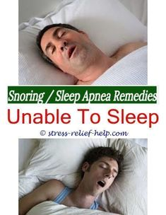 what causes snoring snoring causes and remedies my husband snores sleep problems british snoring machine ways to quit snoring - severe sleep apnea symptoms.stop snoring mouthpiece best anti snoring Severe Sleep Apnea, Severe Insomnia, What Causes Sleep Apnea, Sleep Apnea Treatment, Causes Of Sleep Apnea, Home Remedies For Snoring, Sleep Apnea Remedies, Insomnia Remedies, Natural Sleep Remedies