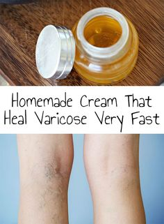 Homemade Cream That Heal Varicose Very Fast