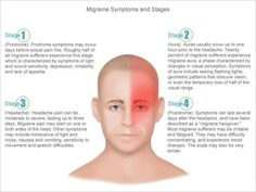 The four stages of migraines