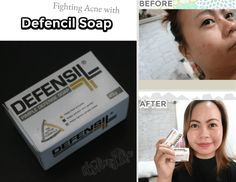 How To Fight Acne with Defencil Soap | My journey to cure pimples using Defensil Soap.