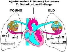 Global Medical Discovery features paper: Age-dependent alterations in the inflammatory response to pulmonary challenge