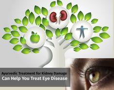Ayurvedic Treatment for Kidney Damage Can Help You Treat Eye Disease  https://goo.gl/QBXZmq  #ayurvedic #treatment #ayurvedictreatment #kidney #kidneydamage #kidneydisease #disease #eyedisease