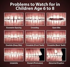 Here are some situations to watch for as your children's permanent teeth come in. If you notice any of these, call our office to arrange an appointment with our orthodontist to learn more.