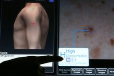 TECHNOPHORIA Dissent Over a Device to Help Find Melanoma By NATASHA SINGER MelaFind's imaging system uses pattern-recognition algorithms to help a dermatologist decide whether to do a biopsy on a skin spot.  MelaFind, a system for imaging skin lesions, has been polarizing the field of skin-cancer detection.