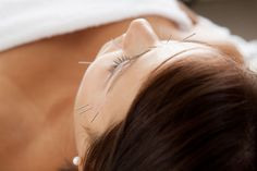 An effective treatment for acne with acupuncture outperforms antibiotics.