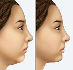 To get rid of double chin there are many face exercise treatments which are painless and work out the fatty deposits that comprise a second chin. No surgery is required when using face yoga toning and double chin reduction exercises to lose a dual chin. Face Lift Exercises, Double Chin Exercises, Face Facial, Face Skin, Double Chin Removal, Facelift Without Surgery, Sagging Face, Chin Implant, Natural Face Lift