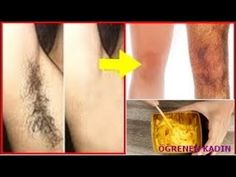End your unwanted hair with the miracle of turmeric – Addie Perfectly Posh, Thanksgiving Banner, Pore Cleansing, Unwanted Hair, Bar Soap, Body Works, Youtube, Turmeric, Moisturizer