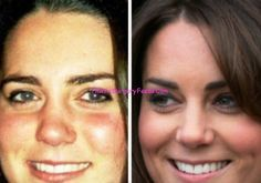 Kate Middleton Plastic Surgery Before and After Nose Job