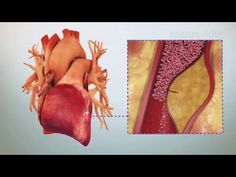 The evolution of oral anticoagulants - YouTube