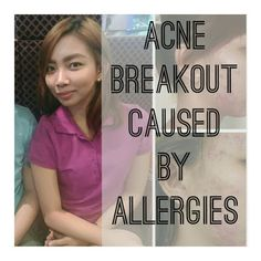 Acne Breakout Caused by Allergies | Makeup in Manila