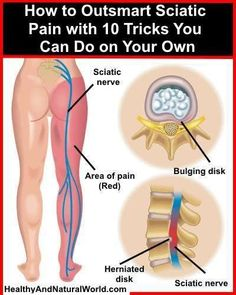 10 Tricks To Outsmart Sciatic Nerve Pain