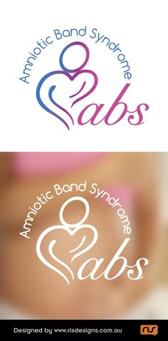 ABS (Amniotic Band Syndrome) is a local charity supporting individuals and their families with this birth defect. Logo created by RIS Designs. www.risdesigns.com.au Graphic Design Studios, Logo Design, Gold Coast Australia, Charity, Birth, Graphic Art, Families, Abs, Branding