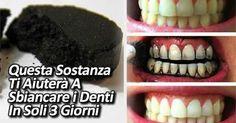 Esistono molti metodi per sbiancare i denti, ma spesso sono molto costosi e non alla [Leggi Tutto...]