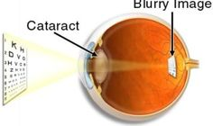 Cataracts – Symptoms and Treatment