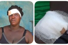 Chiefs Macho Men Inflict Cutlass Wounds On Residents of Nsadweso