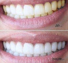 Lifter | Если добавить эту штуку в зубную пасту, ваши зубы всегда будут белыми! Teeth Whitening, Health Remedies, Medical, Clinic, Glow, Healthy, Board, Tips, Health Tips
