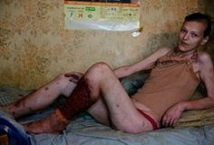 people on krokodil - Google Search