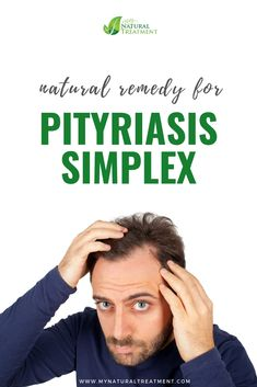 Here you have the most amazing natural remedy for pityriasis simplex using only natural ingredients and a few recommendations. Scalp Conditions, Egg Yolks, Skin Tag, Together We Can, Dandruff, Skin Problems, Natural Skin, Healthy Skin, Natural Remedies
