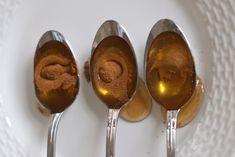 La combinaison de miel et de la cannelle a été utilisée comme un remède populaire puissant très efficace depuis des milliers d'années. Les Égyptiens l'utilisaient dans le traitement des plaies, les Grecs pour prolonger leur durée de vie, et les Indiens de maintenir un équilibre corporel sain. Tous ces gens connaissaient les propriétés médicinales magiques …