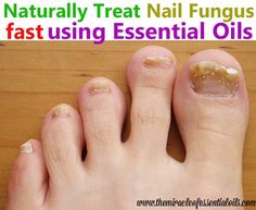 Learn How To Treat Toenail Fungus With Essential Oils Naturally And Super Fast Highly Sensitive Information Ugly Truths About Toe Nail