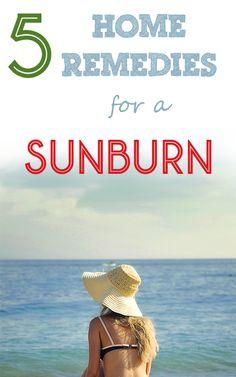 5 Home Remedies for a Sunburn