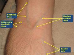 Phlebotomy: Background, Indications, Contraindications