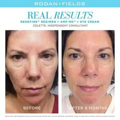 """Within weeks, I began to notice a change in the appearance of my skin."" –#RodanandFields Consultant, Colette.⠀ ⠀"