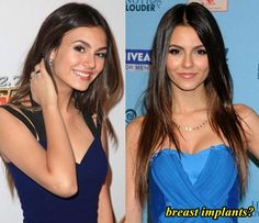 Victoria Justice plastic surgery before and after photos 2