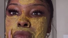 Have you ever wondered how to get rid of dark spots that pop up after acne breakouts? Nature is full of treatments that are powerful dark spot removers- like Turmeric, Honey, and Lemon. We use a wide variety of natural and organic ingredients that benefit Dark Marks On Face, Dark Spots On Face, Acne Out, Cystic Acne Treatment, Greasy Skin, Facial Scrubs, Acne Scars, Acne Skin, Skin Brightening