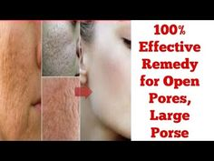 How to get rid of Open/Large Pores|Get smooth & Fairer skin | 100% Effec...