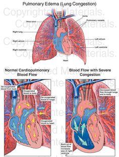 Pulmonary Edema (Lung Congestion) : Medical Exhibit Respiratory Therapy, Respiratory System, Left Sided Heart Failure, Lung Anatomy, Case Presentation, Macan S, Nursing Board, College Nursing, Cardiac Nursing