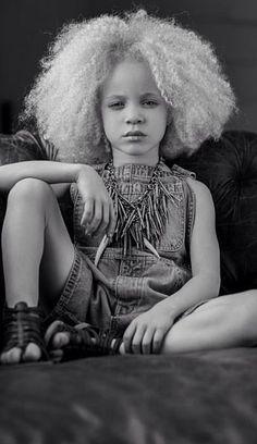 beautiful black albino model - Google Search