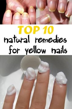 Top 10 natural remedies for yellow nails